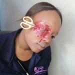 scisor bleed