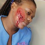 yba bleeding nice